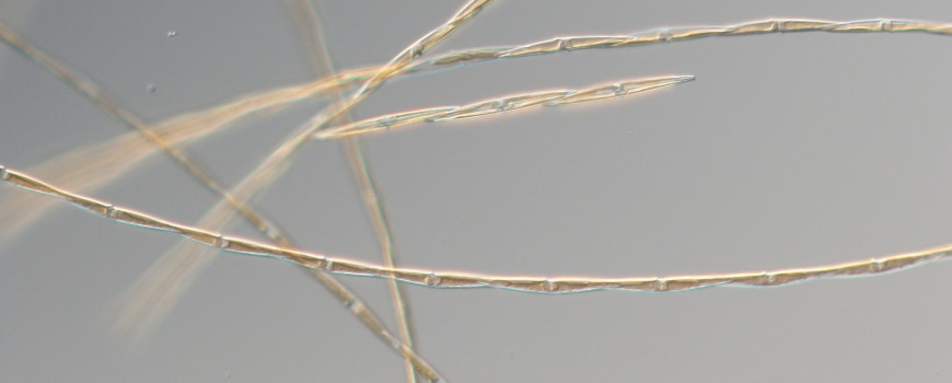 Chains of the neurotoxin-producing diatom, Pseudo-nitzschia australis isolated from northern California coastal waters during the massive toxic bloom of 2015, and still blooming in lesser abundances off California in 2018.    CREDIT: (C. Wingert photo, Cochlan Phytoplankton Ecophysiology Lab, San Francisco State University)